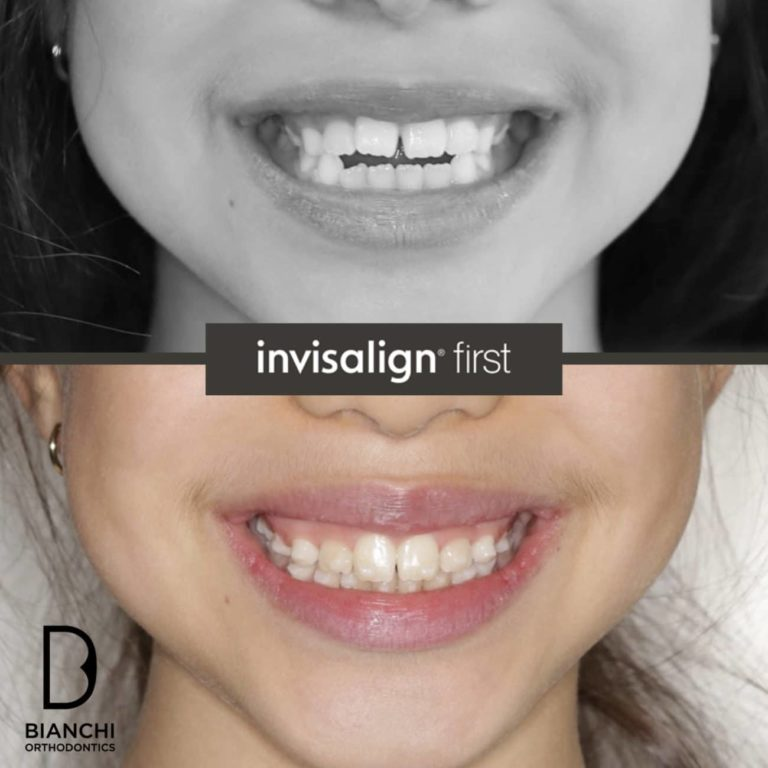 invisalign first bianchi ortho beance 1 1