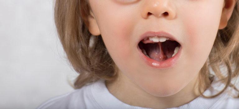 langue frein lingual frenectomie bruxelles